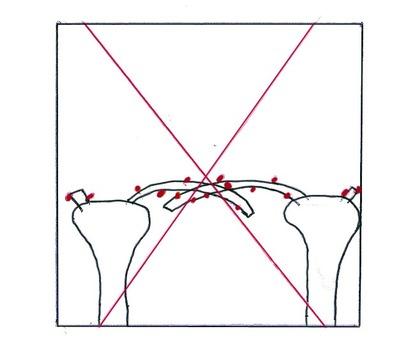 Les douleurs au dessous du dos à la grossesse sur les délais précoces